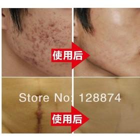 Buy Nuobisong Remove Scar Cream Remove Acne Spots Remove Striae
